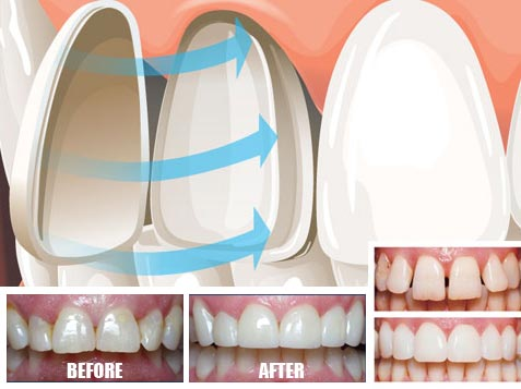 Veneers porcelain
